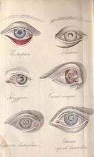Traité Pratique sur les Maladies des Yeux, - William Lawrence